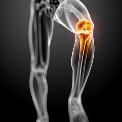 Collateral-ligament-injury-sydney