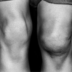 Knee-dislocation-sydney
