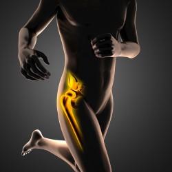 Peri-prosthetic-hip-fracture-Sydney
